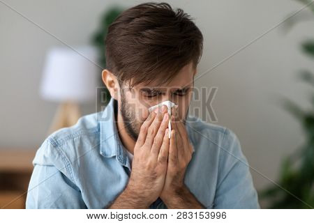 Sick man got flu allergy sneezing in handkerchief blowing nose stock photo
