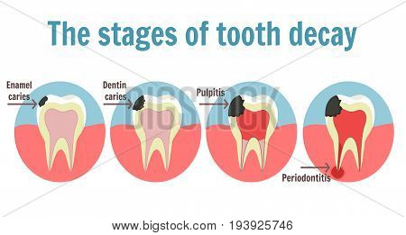 The stages of tooth decay infographic. Dental toothache symbol. Illustration of tooth with caries pulpitis and periodontitis stock photo