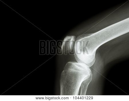Film x-ray knee joint with arthritis ( Gout , Rheumatoid arthritis , Septic arthritis , Osteoarthritis knee ) and blank area at left side stock photo