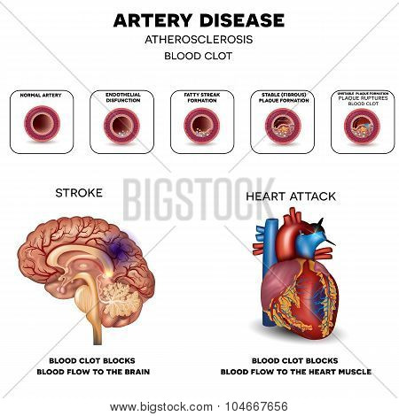 Artery disease Atherosclerosis Stroke and Heart attack. Fatty plaque developing on the inside of the artery at the end the artery is narrowed and blood clot blocks the artery. stock photo