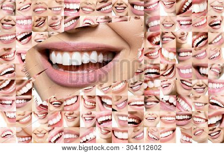 Conceptual background makes of set of laughing human faces with great teeth and detail of young woman's beautiful smile . Healthy beautiful male and female smiles. Teeth health, whitening, prosthetics stock photo