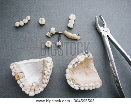 Dental prosthesis equipment and tools. Two gypsum jaws dentures crowns and bone forceps on gray background. stock photo