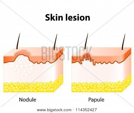 Papule and Nodule. Skin lesion. Papule is a solid elevation of skin and accumulation of material in the dermis with no visible fluid. A nodule most frequently centered in the dermis or subcutaneous fat stock photo