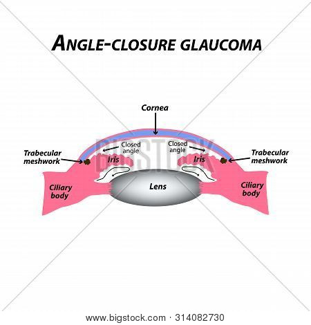 Closed angle glaucoma. A common type of glaucoma. The anatomical structure of the eye. Infographics. illustration on isolated background. stock photo
