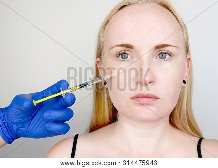 A cosmetologist carries out a procedure - an injection into the face of a young woman. Beauty injections, mesotherapy, hyaluronic acid injections, biorevitalization, cheek correction, fillers stock photo