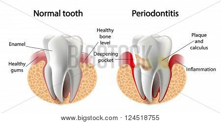 vector image tooth caries disease. Surface caries.Deep caries  Pulpitis Periodontitis. stock photo