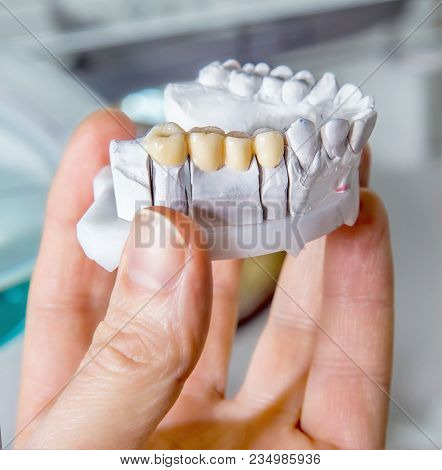Technical shots of model on a dental prothetic laboratory.Dentist hand with plaster model stock photo