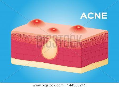acne vector on skin , anatomy on blue background stock photo