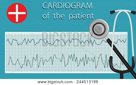 Electrocardiogram and stethoscope - isolated on a colored background - art vector Medical concept stock photo