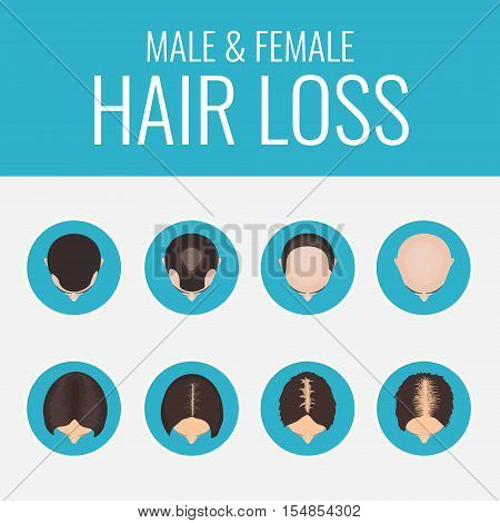 Male and female pattern hair loss set. Stages of baldness in men and women. Alopecia infographic medical design template. Hair loss clinic concept design. Vector illustration. stock photo
