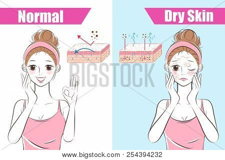 cartoon beauty woman with skincare problem before and after stock photo