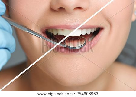 partial view of dentist with dental mirror checking womans teeth, teeth whitening concept stock photo