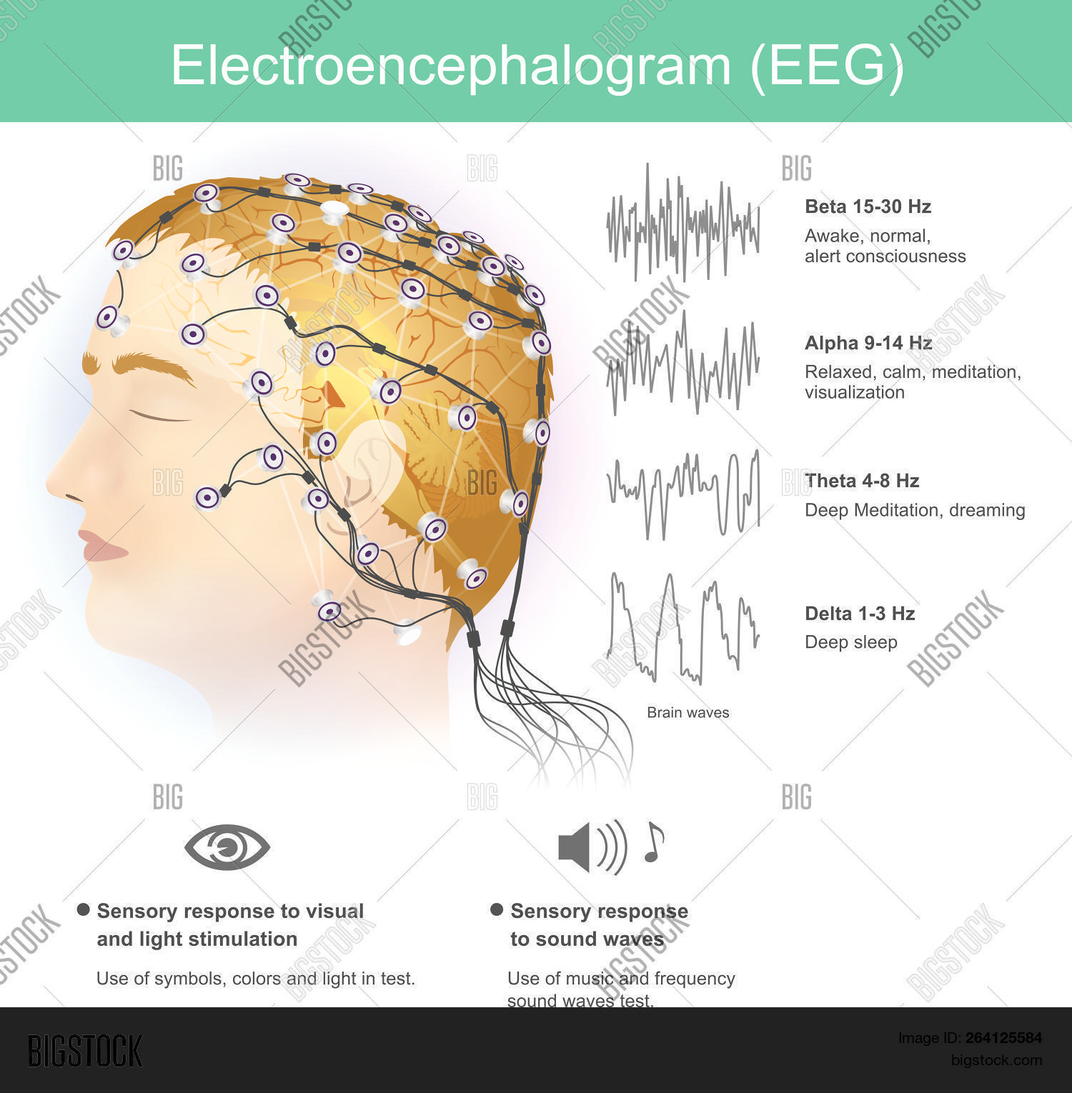 EEG,Electrodes,activity,alert,brain,central,consciousness,diagnose,diagnosis,dreaming,electrical,electrodes,electroencephalography,electromagnetic,encephalography,epilepsy,equipment,frequency,head,healthcare,hospital,human,measurement,medical,medicine,mental,nervous,neurology,neuroscience,patient,placement,processing,record,relaxed,research,science,seizures,sick,signal,sleep,sound,stimulation,system,techniques,technology,tool,treatment,visualisation,wave