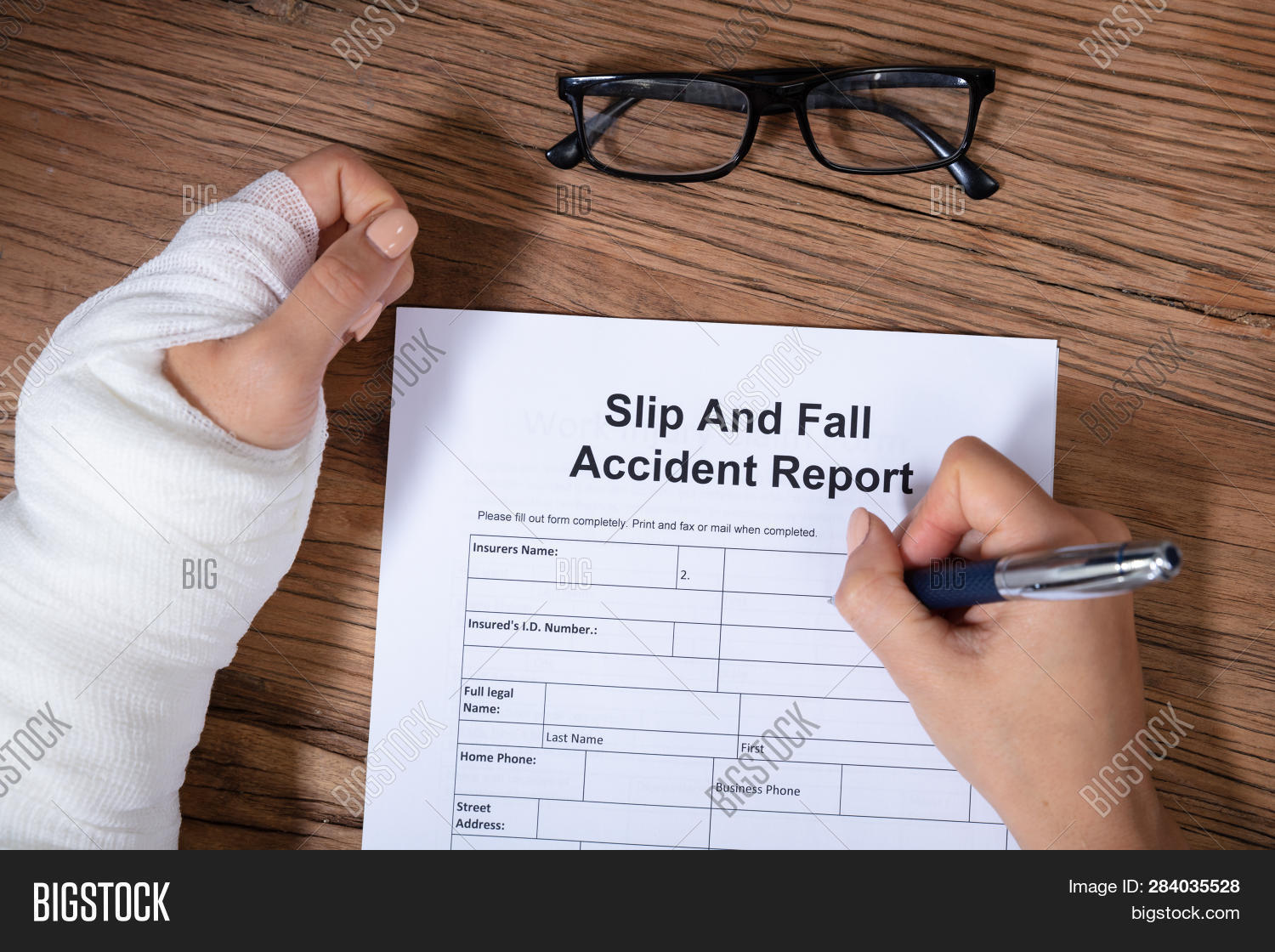 An Overhead View Of Woman With Factured Hand Filling The Slip And Fall Injury Report