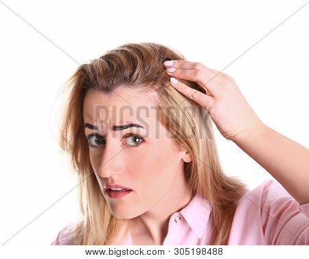 Young woman with hair loss problem on white background stock photo