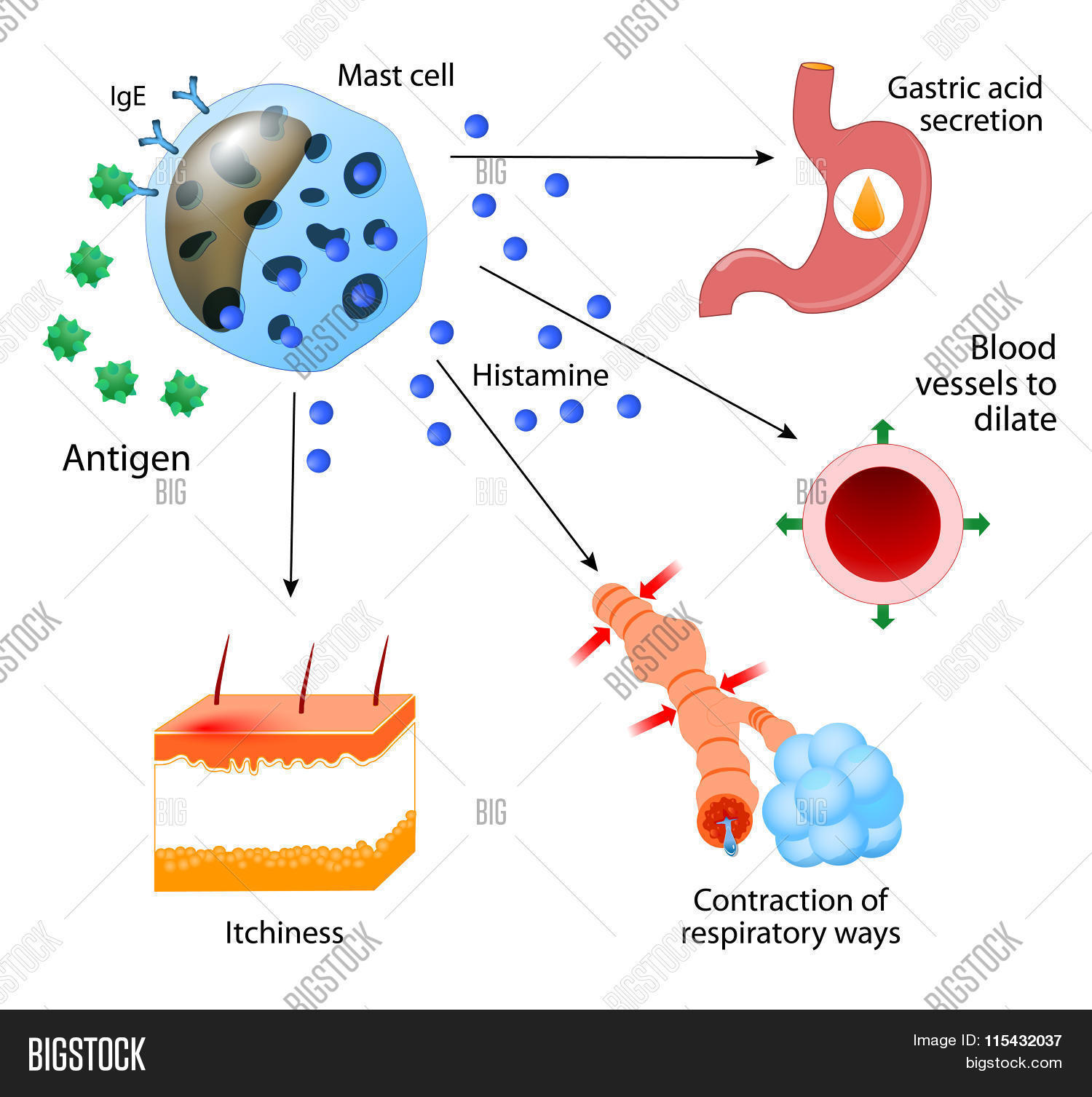 acid,allergen,allergic,allergy,anaphylactic,anaphylaxis,anatomy,antibody,antigen,asthma,blood,care,cell,degranulation,diagram,dilate,disease,gastric,health,healthcare,histamine,human,ige,immune,immunology,itchiness,lymphocyte,mast,mechanism,medical,medicine,reaction,receptor,release,science,secretion,shock,skin,stomach,system,vessels,white
