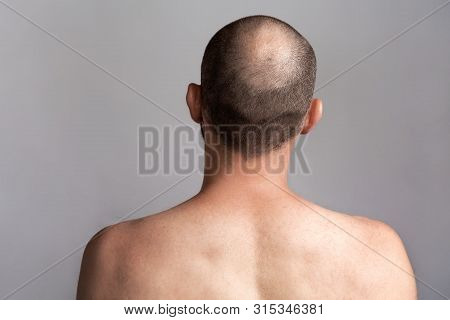 The concept of male alopecia and hair loss. Rear view of the mans head with a bald spot. Bare shoulders stock photo