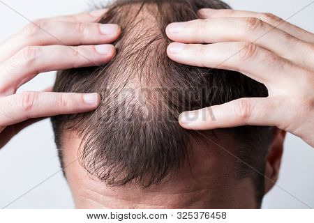 Close-up balding head of a young man on a white isolated background. stock photo