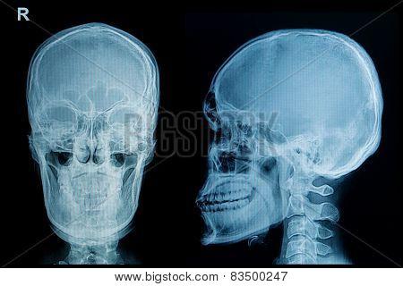 Skull X-beams Image