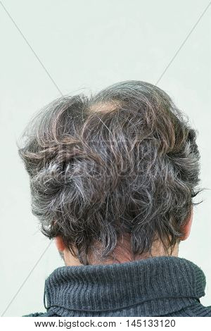 Mature yang man seen from behind in the head begins to lose hair he begins to be old. stock photo