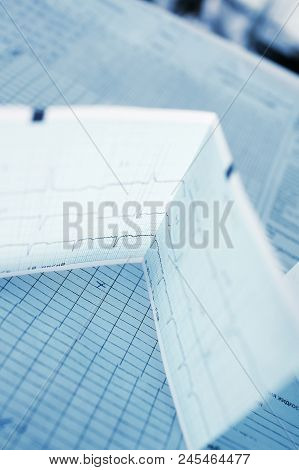 ECG and another medical records on the table in the nursing station. stock photo