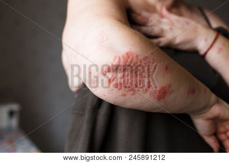 The problem with many people - eczema on hand. Dark background. Man itchind dry skin. stock photo
