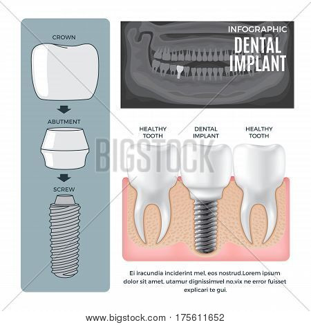Infographic dental implant structure info poster with colourless picture of human jaw. Vector illustration of dental implant structure screw with abutment near crown and comparison with healthy tooth stock photo