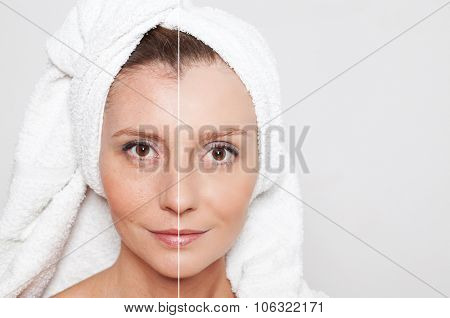Beauty concept - skin care, anti-aging procedures, rejuvenation, lifting, tightening of facial skin stock photo