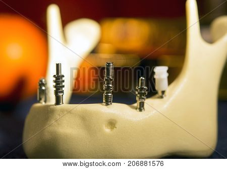 titanium abutments in the artificial jawbone close-up stock photo