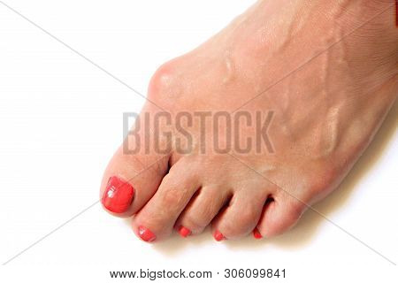 Varus valgus and Hallux valgus or bunion on middle aged woman foot. Isolated closeup on white background. Concept of treatment or cosmetology help stock photo