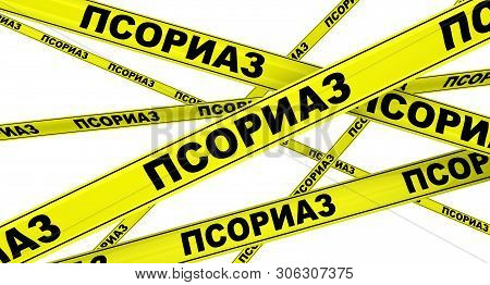 PSORIASIS. Yellow warning tapes with black Russian words PSORIASIS (is a long-lasting autoimmune disease characterized by patches of abnormal skin). Isolated. 3D Illustration stock photo