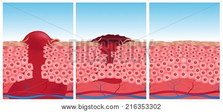 wound skin vector graphic . blood come out of wound stock photo