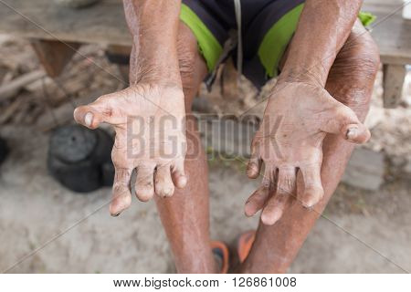 Hansen's diseasecloseup hands of old man suffering from leprosy amputated hands stock photo