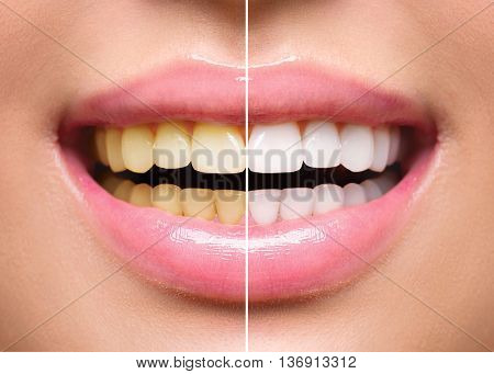 Woman Teeth Before and After Whitening. Happy smiling woman. Dental health Concept. Oral Care concept stock photo