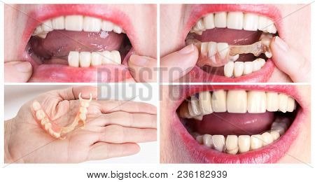 Dental rehabilitation with lower flexible nylon denture, before and after treatment. Removable dentures flexible, devoid of nylon, hypoallergenic exempt from monomer stock photo