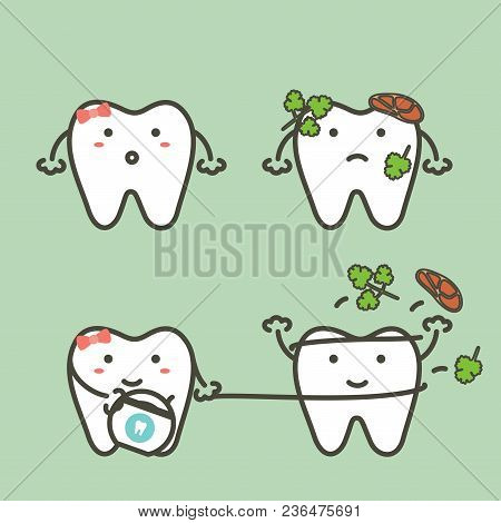 step of tooth cleaning food stuck in teeth by floss to protection decay tooth, before and after - dental cartoon vector flat style cute character for design stock photo