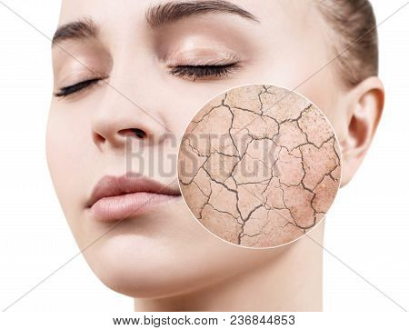 Zoom circle shows dry facial skin before moistening. Dry skin concept. stock photo