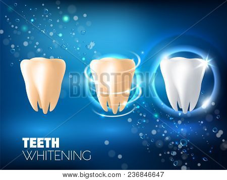 Teeth whitening concept vector realistic illustration. Tooth before whitening, during and after whitening procedure on blue sparkling background. Dental health and teeth restoration ad design template stock photo