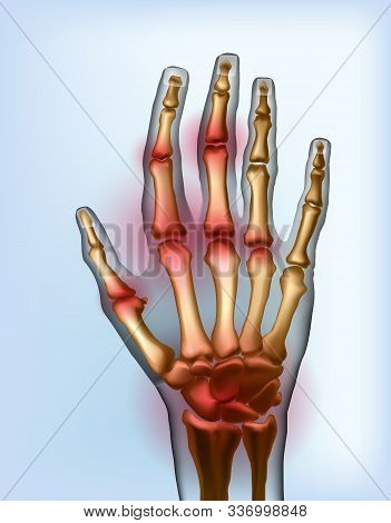 Frontal view image sore osteoarthritis joints of bones the of hand isolated. Anatomy of joints with arthritis for advertising or medical publications. Illustration stock vector. stock photo