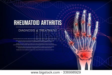 Rheumatoid arthritis or osteoarthritis banner sore inflammation joints of hand bones. Anatomy of joints with arthritis for advertising or medical publications. Illustration stock vector. stock photo
