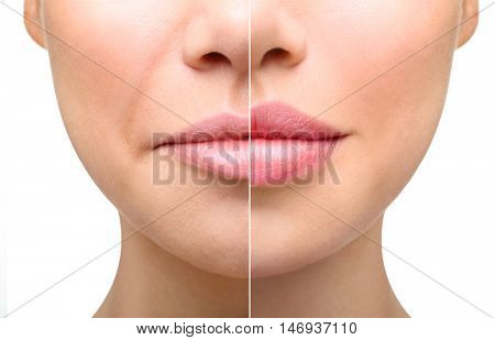 Part of face, young woman close up. Sexy plump lips after filler injection and syringe injection to nasolabial fold. Beauty concept. stock photo