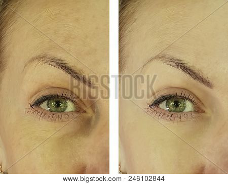 face woman wrinkles before and after lifting, antiaging stock photo