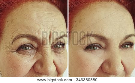 old woman wrinkles face before and after treatment stock photo