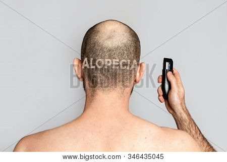 Male alopecia. A man with thinning hair is holding an electric razor. Rear view. Gray background. The inscription alopecia is shaved on the back of the head stock photo