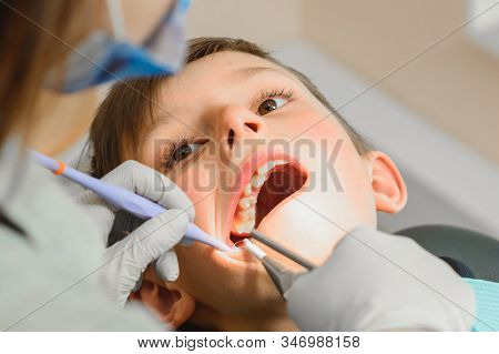 The boy examined by an orthodontist, he opened his mouth wide and the dentist examined his teeth. stock photo