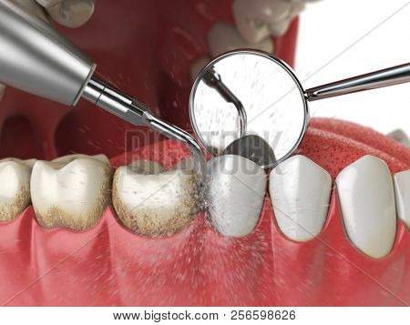Professional teeth cleaning. Ultrasonic teeth cleaning machine delete dental calculus from human teeth. 3d illustration stock photo