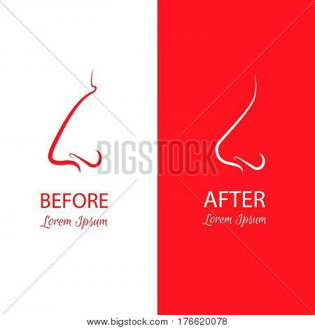 Nose reshaping before and after surgery. Abstract anaplasty illustration isolated on a white and red background.Template for business card and banner stock photo