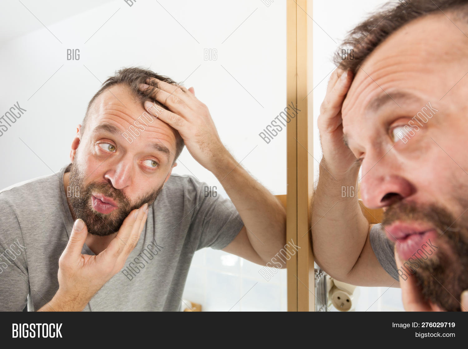 Worried Adult Man Looking In Bathroom Mirror At His Decreasing Hairline Thinking About Hair Care Tre