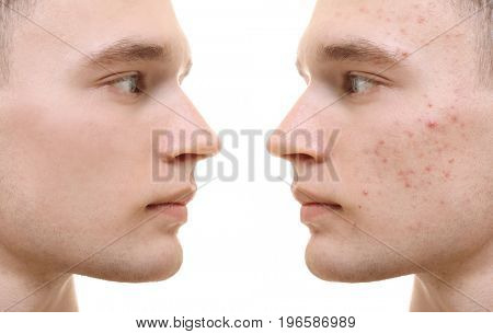 Young man before and after acne treatment on white background. Skin care concept stock photo