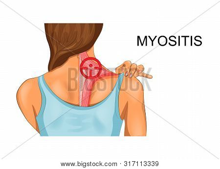vector illustration of trapezius muscle. the incidence of myositis stock photo